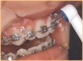 pr110a Mundhygiene