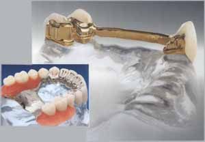 pr25b Herausnehmbarer  Zahnersatz