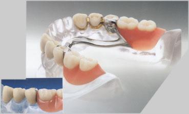 Geschiebetechnik - Zahnarztpraxis in Ahlen