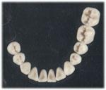 pr22a Festsitzender Zahnersatz