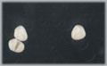 pr28 Klammerprothese