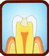 120a Kariesentfernung ohne Bohrer (Carisolv)