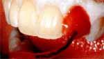 122b Bleichen (weiße Zähne)