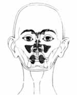 200a Bionator - Therapie