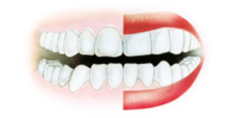 31195_prophylaxe_atlas_dachdt-5 Parodontologie