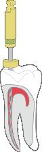 wurzelkanalbehandlung Moderne Komet F 360 Wurzelkanalbehandlung